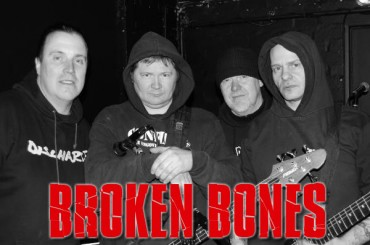 BROKEN BONES: Sons of Anarchy